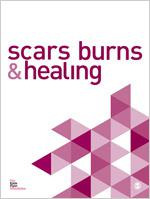 Scars, Burns & Healing